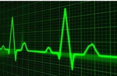 Кардиологи узнали основные риски возникновения инфаркта