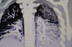 Медики показали, во что превратились лёгкие студента через два года курения вейпа