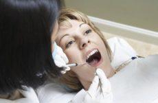 Российские ученые выявили опасность зубных имплантатов