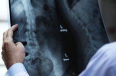 Врачи поведали о заболеваниях, которые страшнее онкологии