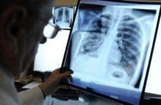 Эксперты поведали о первых признаках рака лёгких