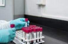 Учёные выяснили, что белок, защищающий организм от инфекций, может вызывать рак