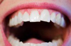 Эксперт озвучила главные ошибки при чистке зубов