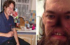 Мужчина принял рак за насморк и полностью лишился носа
