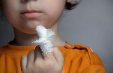 Как лечить небольшую рану, чтобы не было грубого рубца