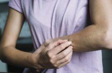 Врачи рассказали, как распознать серьезную болезнь по пятнам на коже