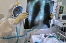 Эксперт назвал второй по поражаемости коронавирусом орган