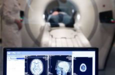 Ученые обнаружили изменения в мозге у больных коронавирусом