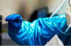 Коронавирус может быть сосудистым заболеванием, а не респираторным