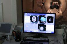 Врач объяснил, как коронавирус воздействует на мозг