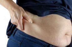 Врач объяснил, почему диеты не помогут при ожирении