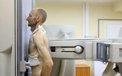Россиянам назвали первые симптомы рака