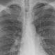 Онколог назвал основные симптомы рака легких