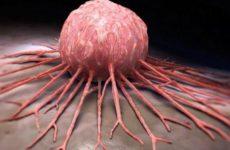 Обнаружен новый способ убить раковые клетки