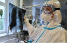Исследования подтвердили способность коронавируса проникать в мозг