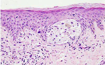 Раскрыта причина развития агрессивного рака кожи