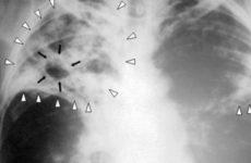 Носители туберкулеза быстрее справляются с коронавирусом