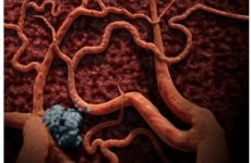 Решена столетняя загадка раковых опухолей