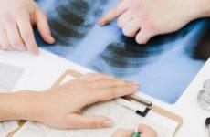 Медики из США установили, как коронавирус поражает легкие человека