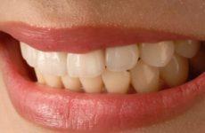 Американские медики придумали, как снизить чувствительность зубов к холоду