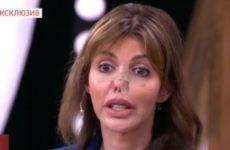 Почти лишившаяся носа Алиса Казьмина пришла в студию шоу Андрея Малахова